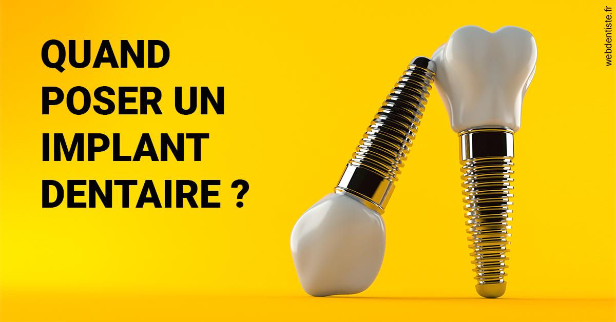 https://dr-nizard-veronique.chirurgiens-dentistes.fr/Les implants 2