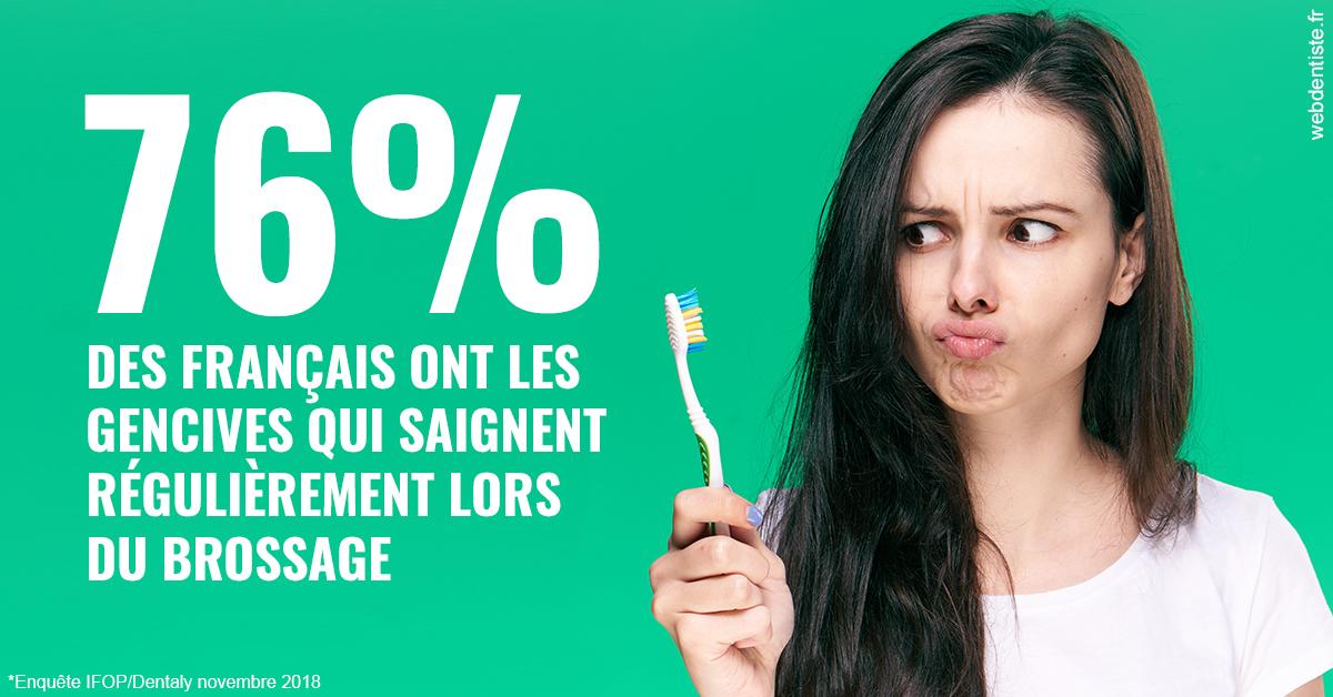 https://dr-nizard-veronique.chirurgiens-dentistes.fr/76% des Français 1