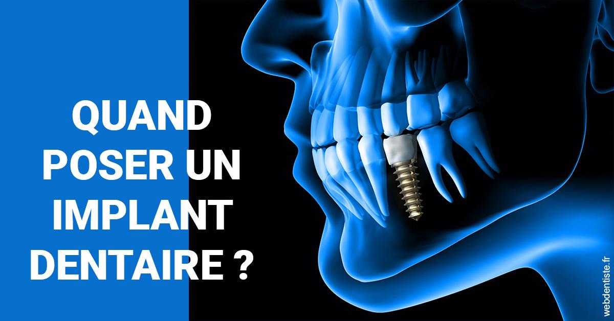 https://dr-nizard-veronique.chirurgiens-dentistes.fr/Les implants 1